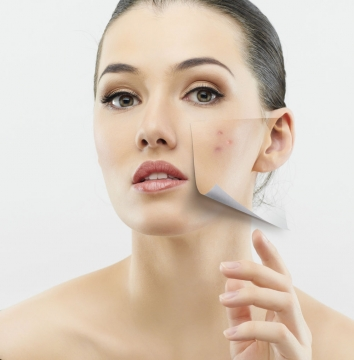 Tips for Getting Rid of Skin Imperfections Picture